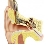 First totally implanted hearing aid