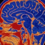 10 astonishing facts about the human brain
