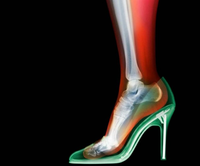 X-Ray photography by Nick Veasey (7)