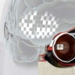 First Bionic eye implant