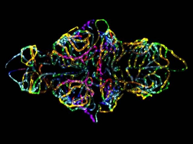 The blood-brain barrier in a live zebrafish embryo