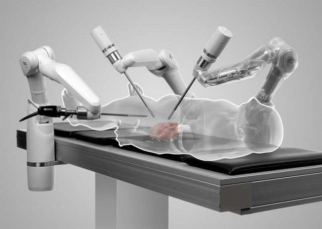 Robot surgeons to operate on beating human hearts 1