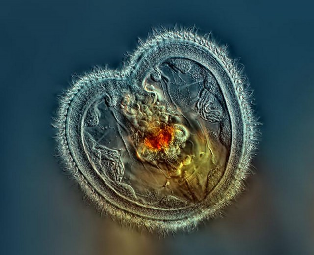 2014 Nikon Small World Winners