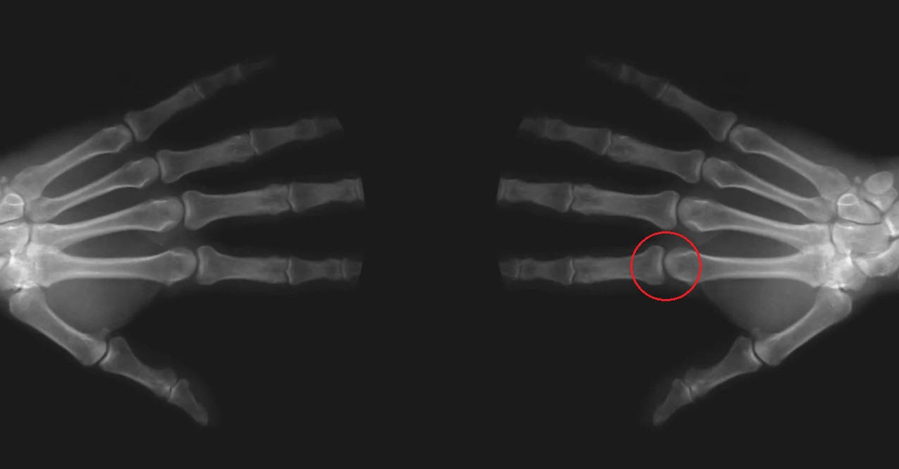What happens to your knuckles when you crack them