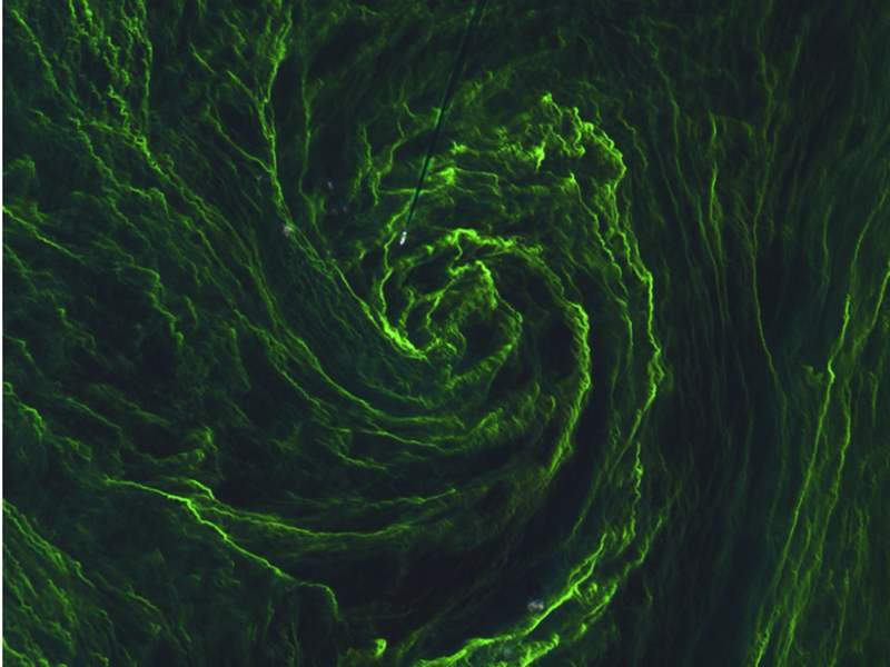 Eye of an Algal Storm