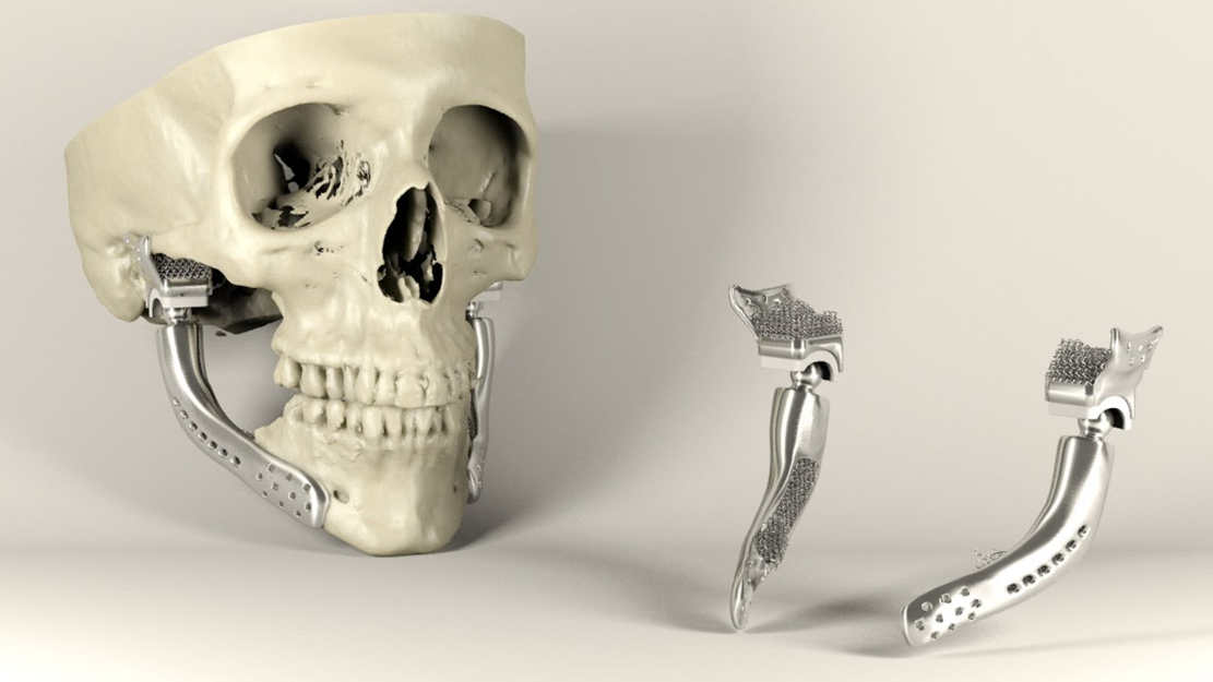 3D-printed medical implants 3