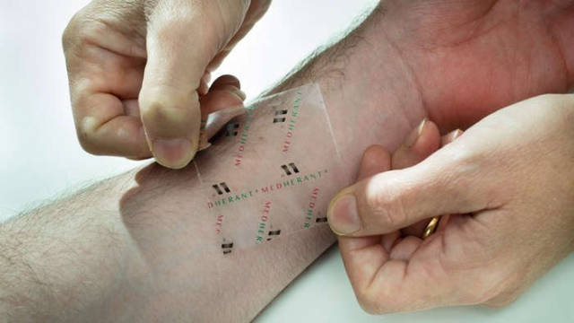 Ibuprofen patch delivers pain relief where it's needed