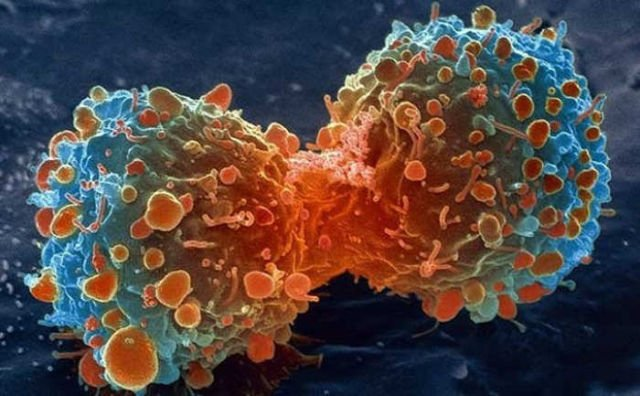 Universal Cancer vaccine on the horizon