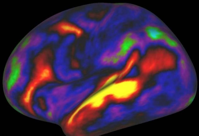 97 new regions in our Brain