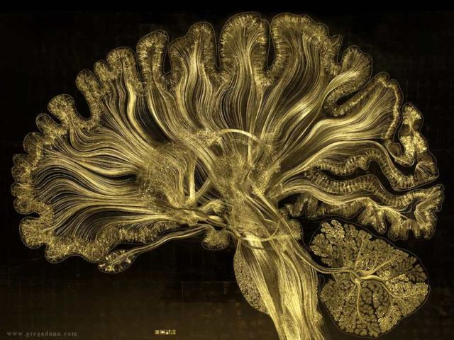 This is what Consciousness looks like