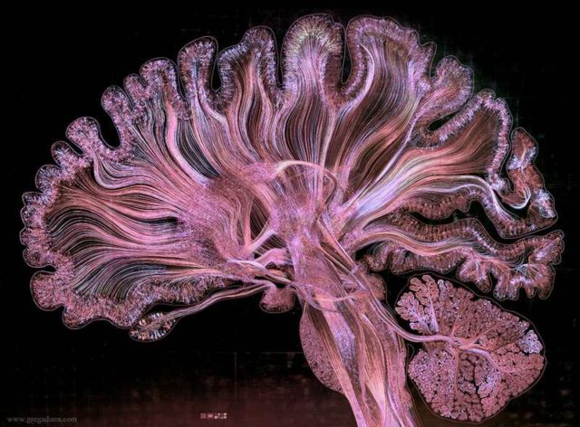This is what Consciousness looks like (4)