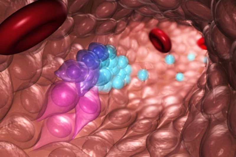 Making Blood Stem Cells from patients' own cells