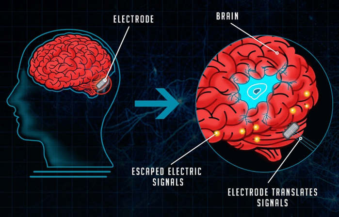 The Evolution of Brain-Computer Interfaces