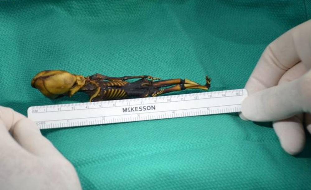 Mystery of Atacama Alien Mummy solved