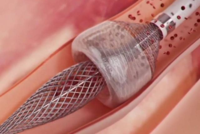 New procedure can safely remove Blood Clots
