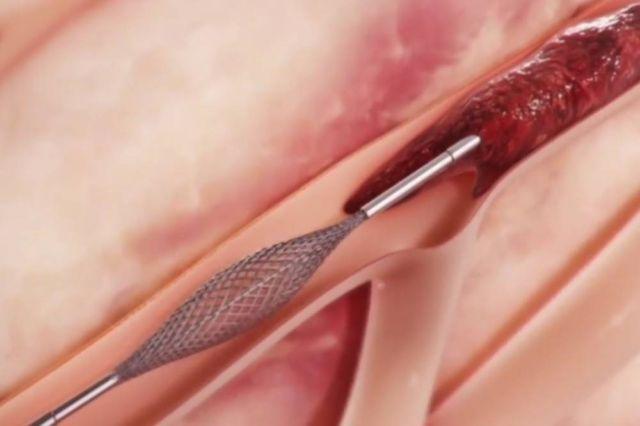MegaVac Catheter