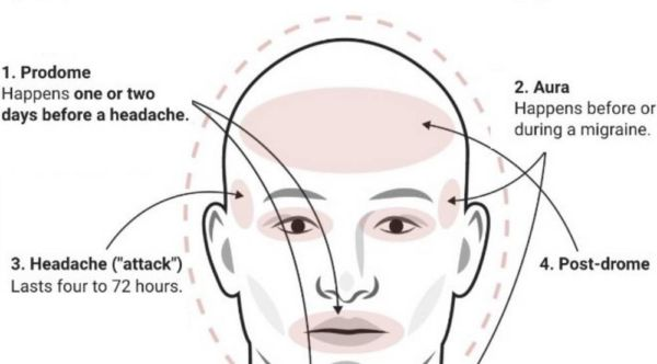The difference between a Headache and a Migraine (4)
