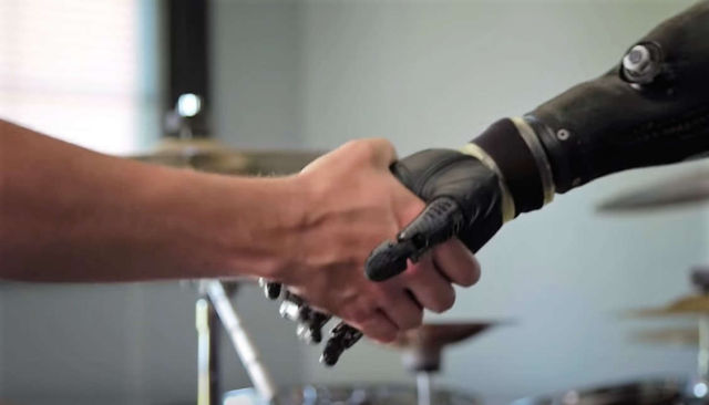 Beyond bionics- the future of Prosthetics
