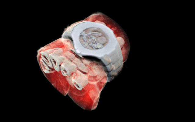 First 3D color X-ray of a Human