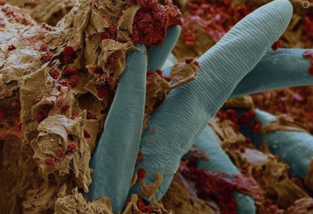 The Bacteria That Live on Your Skin