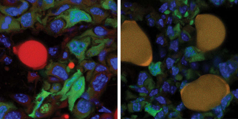 New method converts Breast Cancer Cells into fat Cells