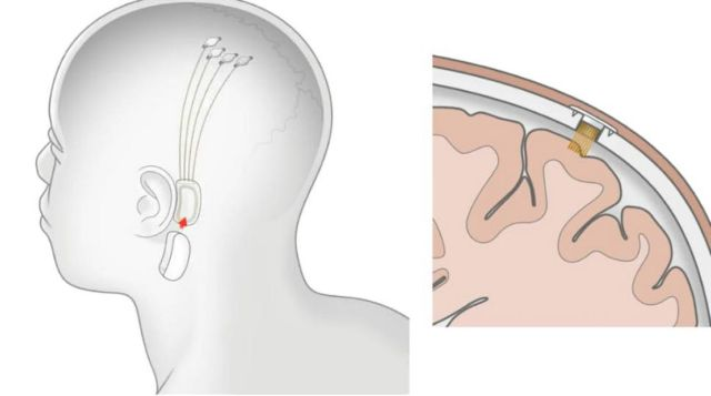 Neuralink plans its first brain chip implants