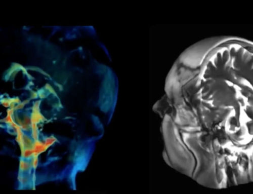New Imaging technique captures how Brain moves