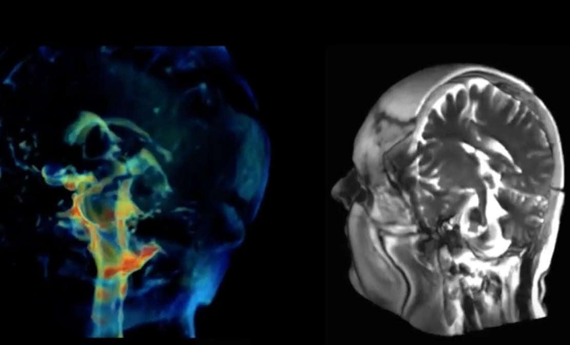 New Imaging technique captures how Brain moves
